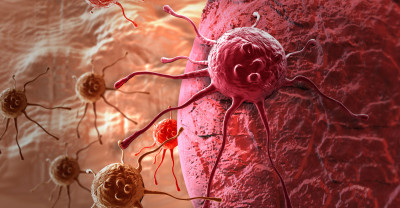 cancer-thinkstock