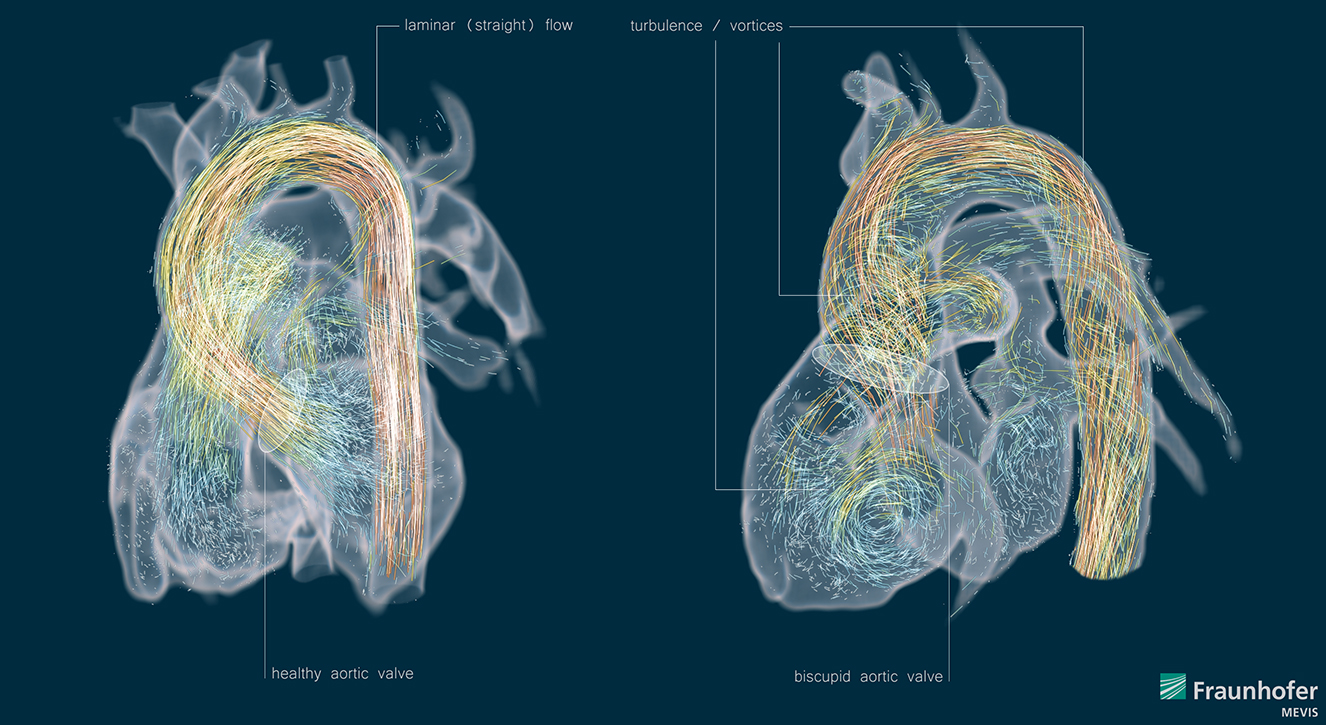 The Beauty of Blood Flow Analysis.
